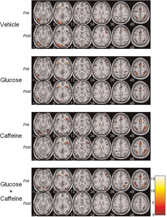 fMRI images from experiments on caffeine and glucose use